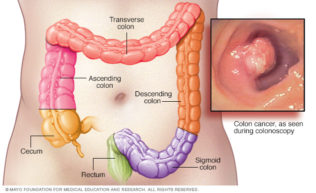 colon cancer, rectal cancer, mayo clinic
